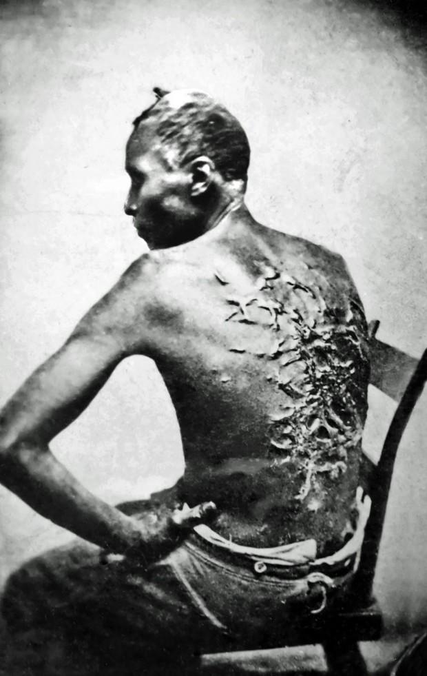 cicatrizes de flagelação em um escravo.jpg